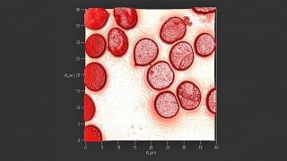 Topography image of erythrocytes (red blood cells)
